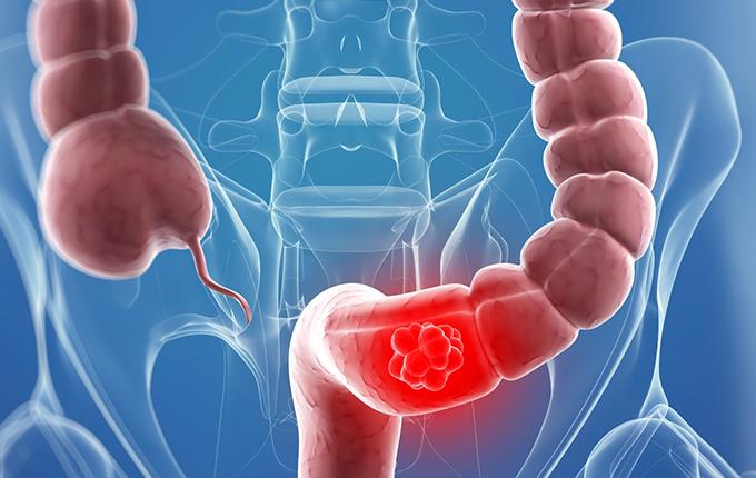 Bệnh viêm đại tràng do nhiều nguyên nhân khác nhau