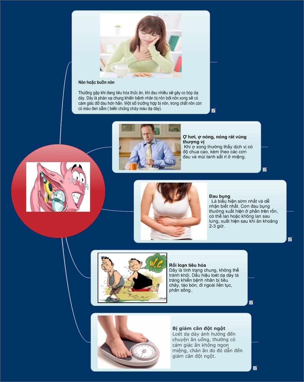 4 triệu chứng viêm loét dạ dày