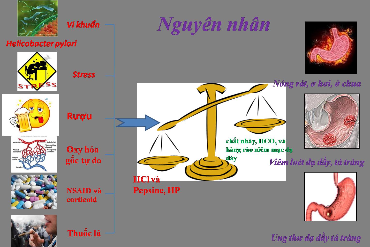 tổng quan bệnh viêm loét dạ dày